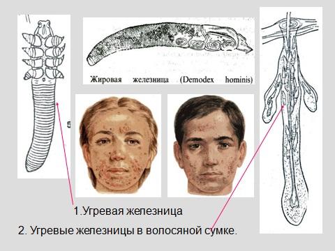 Презентация по биологии клещевой энцефалит