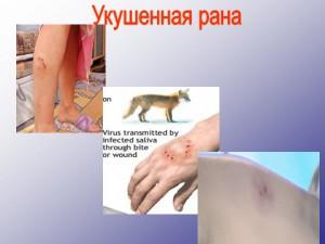 колотые, резаные, рваные и укушеные раны