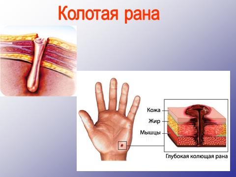 раны колотые и укушенные